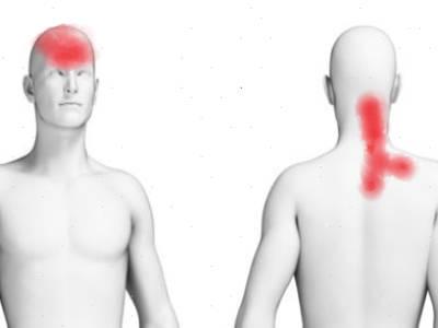 f-Body Chart Neck Pain headache
