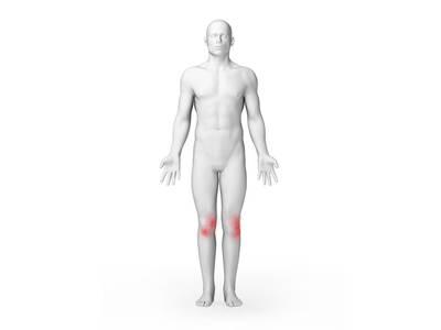 f-Knee Pain body chart