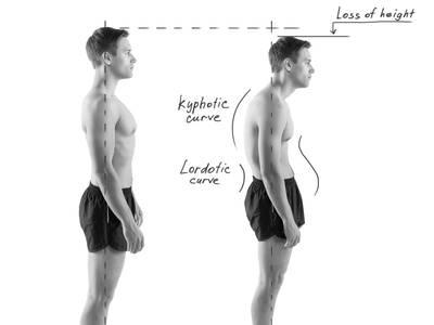 f-good-and-bad-posture-bw